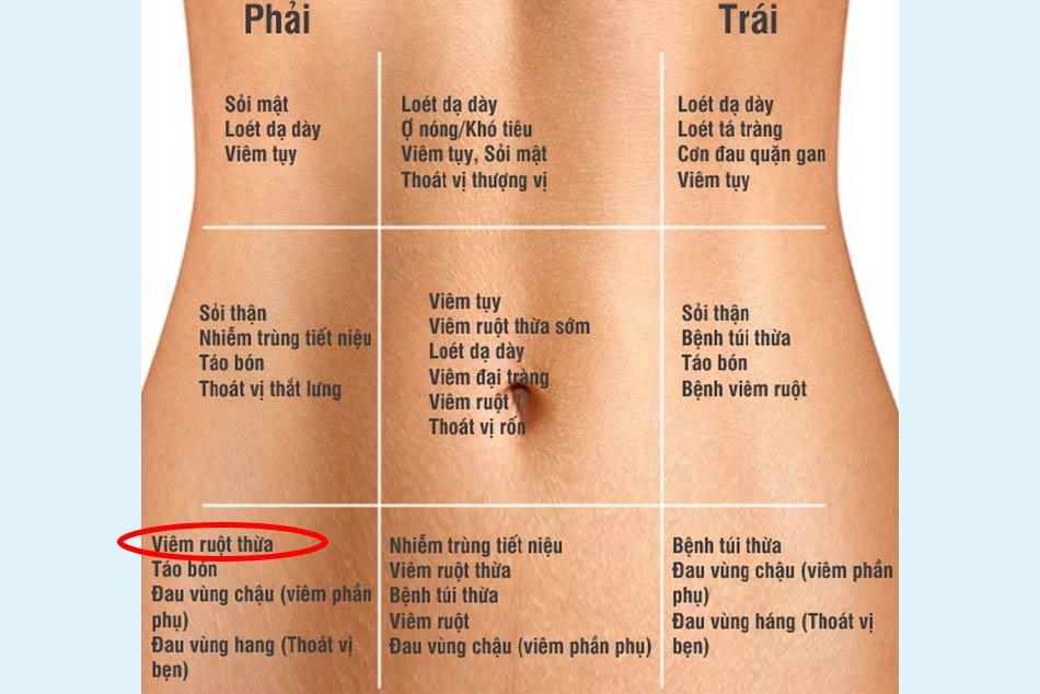 Vị trí đau ruột thừa/viêm ruột thừa